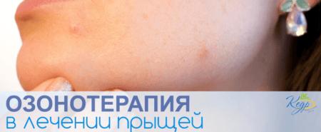 Озонотерапия в лечении прыщей